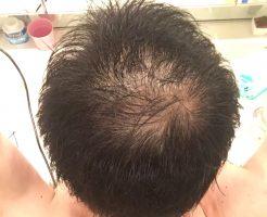 頭頂部薄毛