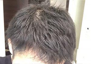 禁煙 半年 髪